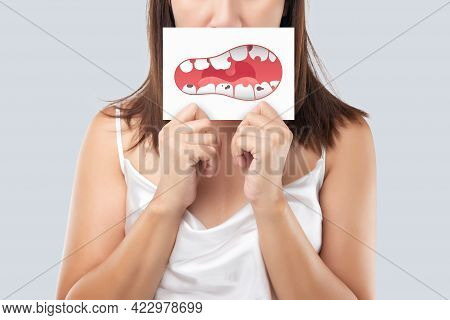 The Woman Show The Picture Of Caries Problems, Illustration Health Gums And Teeth On A White Paper.