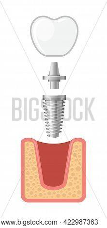 Dental Implant And Human Teeth Set. Vector