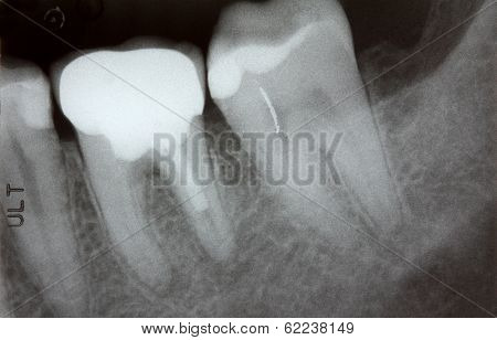 Teeth x-ray showing problem with infected gum and failed root
