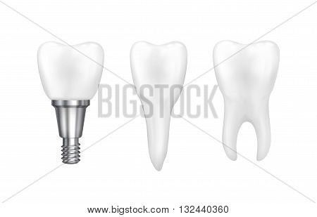 Tooth implants and normal tooth isolated on white background. Screw implant, dental inplant tooth, bone implantation, tooth root inmplant illustration vector