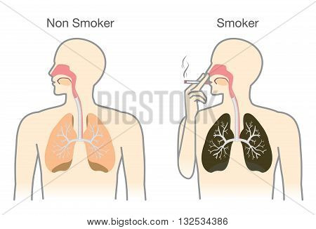 Comparison between lung of smoker and non smoker. This illustration about medical.