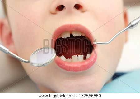 Dentist checking up teeth health, close up
