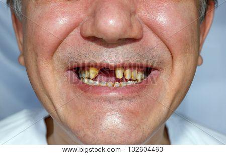 Man Smile With Peeled Teeth