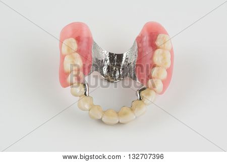 Clasp Prosthesis With And Latch Ceramic Crowns