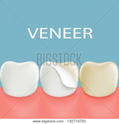 Dental veneers on a human tooth. Stock vector illustration.