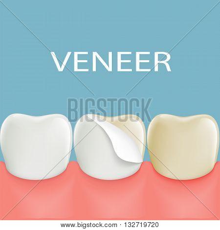 Dental veneers on a human tooth. Stock vector illustration.