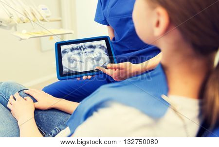 people, medicine, stomatology, technology and health care concept - close up of female dentist showing teeth x-ray on tablet pc computer screen to patient girl at dental clinic office