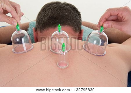 Multiple Vacuum Cup Of Medical Cupping Therapy On Body