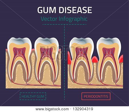 Teeth infographic. Gum disease chart. Editable vector illustration in modern style. Medical concept in natural colors on a dark violet background. Keep your teeth healthy