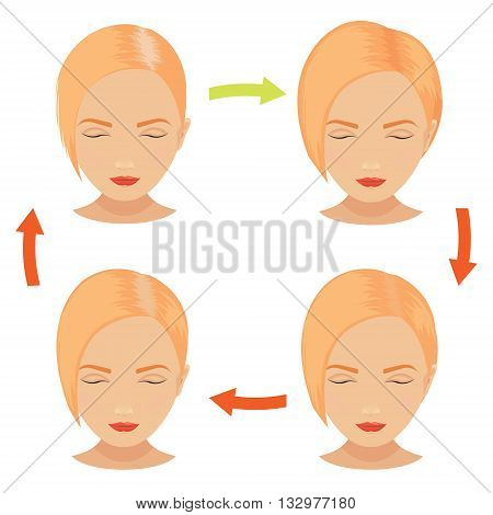 Female hair loss stages set. Blond woman before and after hair treatment and hair transplantation. Female pattern baldness. Implantation of hair. Vector illustration.