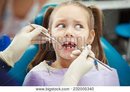 Scared Child Sits At Dentist Chair With Open Mouth Without Front Tooth While Doctor Examines Her In
