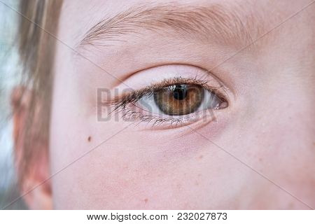 Eyes Of The Young Girls Brown. Visible Half Of Faces, Eyebrows, Eyelashes, Cheek, Eyelid. There Is A