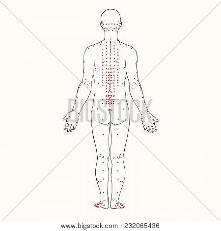 Body (back) Acupuncture Scheme With Red Points, Hand Drawn Doodle, Sketch In Pop Art Style, Black An