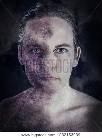Abuse, a woman with a bruised face