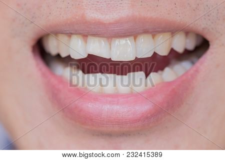 Teeth Injuries Or Teeth Breaking In Male. Trauma And Nerve Damage Of Injured Tooth, Permanent Teeth