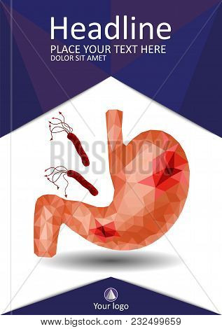 Realistic Low Poly Human Stomach And Duodenum Cover Design. Gastric Ulcer Diseases, Helicobacter Pyl