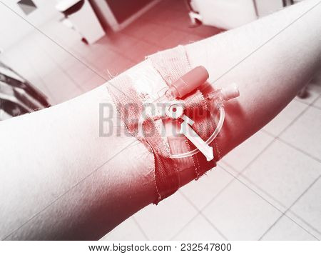 Modern Peripheral Venous Catheter For Intravenous Infusion On Male Arm In Hospital