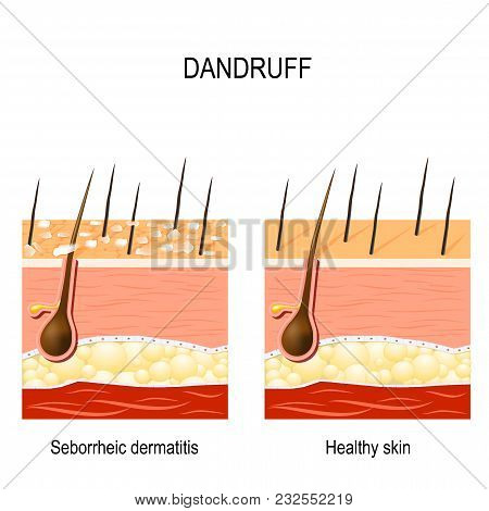 Dandruff. Seborrheic Dermatitis Can Occur Due To Dry Skin, Bacteria And Fungus On The Scalp. It Caus