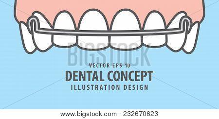 Banner Upper Hawley Retainer Illustration Vector On Blue Background. Dental Concept.