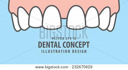 Banner Upper Diastema Teeth Illustration Vector On Blue Background. Dental Concept.