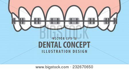 Banner Upper Braces Teeth Illustration Vector On Blue Background. Dental Concept.