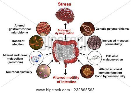 Pathophysiology of irritable bowel syndrome IBS, 3D illustration showing mechanisms of IBS development poster