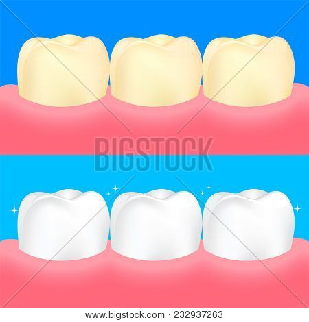 Dental Veneers On Human Tooth.  Before And After, Whitening Oral Care Concept. Deep Cleaning, Cleari