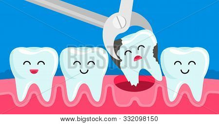 Tooth Decayed Tooth Is Removed With Tweezers In The Oral Cavity. Concept Of Children's Dentistry.