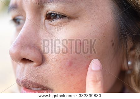 Close Up Of Women Freckle, Dark Spot On Face, Dried Skin Issues, Need Treatment. Asian Middle Age Wo
