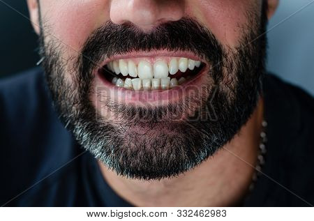 Cropped Close Up Portrait Of A Bearded Man Showing His Teeth.