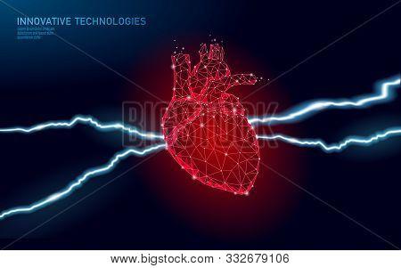 3d Medicine Heart Attack Warning. Human Health Diagnostics Vascular Organ System Painful Disease. Ca