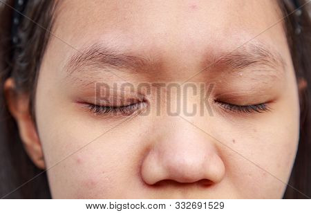 Problems Facial Skin Is Acne And Blemishes.