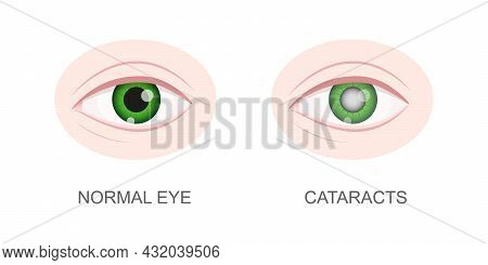 Healthy And Cataract Eye Closeup View. Eyeball With Normal And Cloudy Lens. Anatomically Accurate Hu
