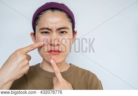 Asian Woman Pointing To Acne Inflamed On Her Face. Inflamed Acne Consists Of Swelling, Redness, And