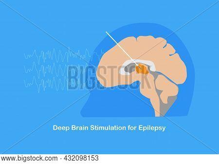 Deep Brain Stimulation Or Dbsat Anterior Thalamic Nucleus  For Treatment Of Epilepsy