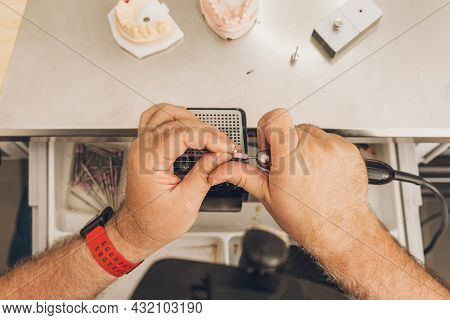 Aerial Photo Of The Hands Of A Male Filing With A Ceramic Mould With A Electric Tool In A Dental Lab