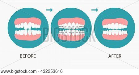 Vector Illustration Of Stages Of Orthodontic Treatment Braces On Teeth . Teeth Before , After Braces