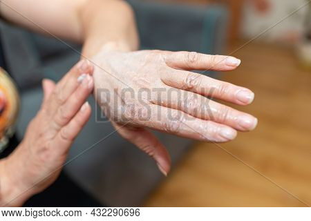 Womans Hands Applying Moisturizer On Her Skin. Female Smears Hand Cream At Home, Closeup.hands With