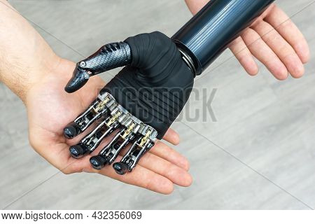 Bionic Hand. Modern Technology Prosthetic Limbs. Manufacturing Of Artificial Limbs From High-strengt