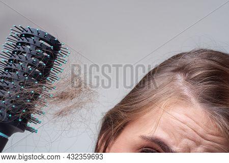 Concept Of Hair Loss. Hair Loss Close Up. Tangled Problem Hair.