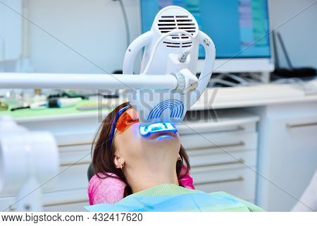 Laser Bleaching Teeth In Clinic. Teeth Whitening For Patient. Bleaching Of Teeth At Dentist Clinic.