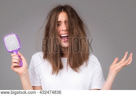 Woman With Hair Loss Problem Worried About Hair Loss.