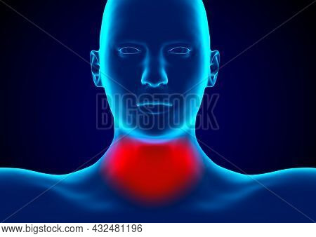 Pharyngitis Is An Infection Of The Pharynx Caused By Bacteria Of The Genus Streptococcus. 3d Renderi