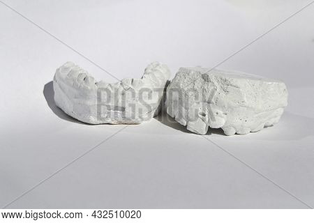 Dental Casting Gypsum Model Plaster Cast Stomatologic Human Jaws Prothetic Laboratory. High Quality