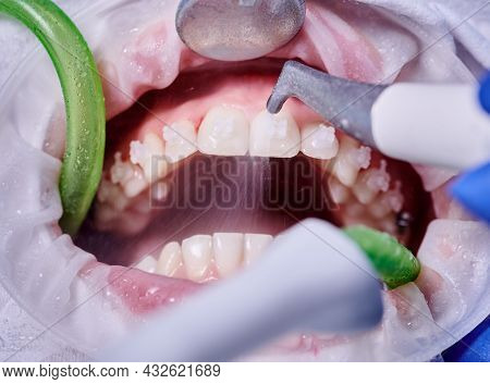 Close Up Of Orthodontist Using Dental Tools While Cleaning Teeth Of Patient. Woman With Cheek Retrac