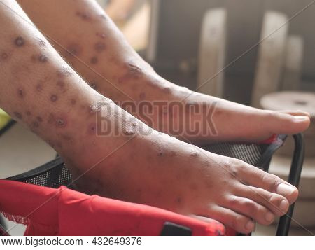 Close Up Of Foot With Ulcer Filled With Pus Condition Caused Of Scabies Infection, Sensitive Skin It