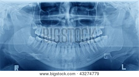 Imagen de la radiografía panorámica de los dientes