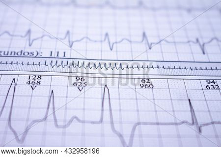 Electrocardiogram Beats Recorded On Paper. Closeup To Heart Beat. Study Of The Heart.