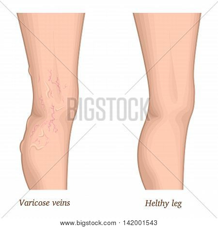 Illustration of a healthy leg and the affected varicose veins