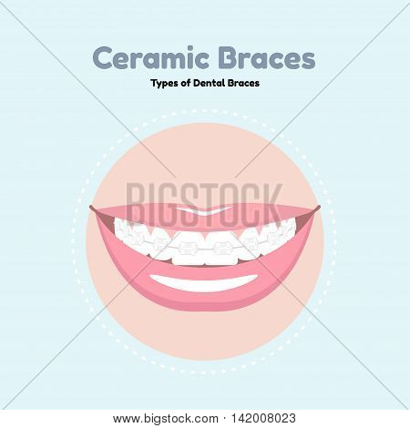 Ceramic Dental Braces. Types of Dental Braces. Vector flat illustration of smile with braces on the teeth.